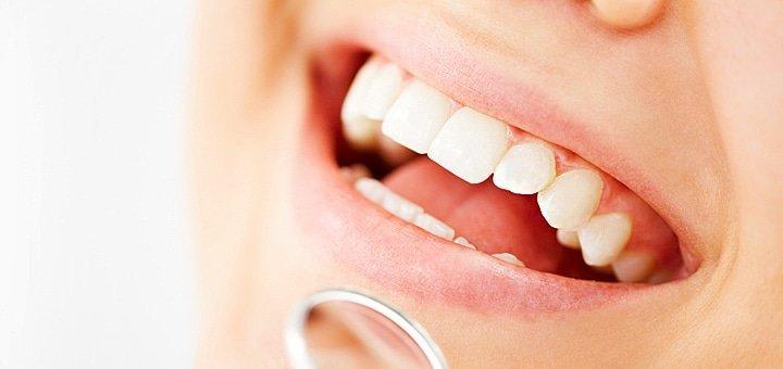 Любые стоматологические услуги на сумму 500, 1000 или 2000 грн. в клинике современной стоматологии «SHINE»!