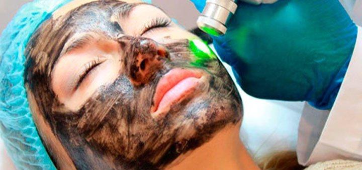 До 3 сеансов лазерного карбонового пилинга лица, декольте или спины в центре города