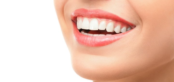 Художественная реставрация центрального зуба фотополимерным материалом в клинике «White Smile»