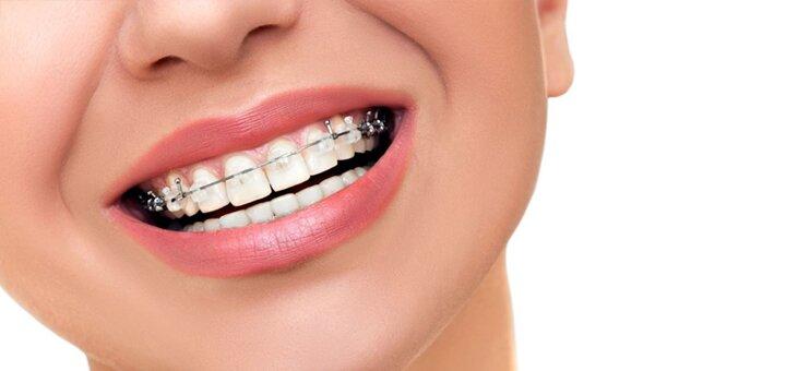 Установка брекет-системы в стоматологической клинике «Реко Дент»