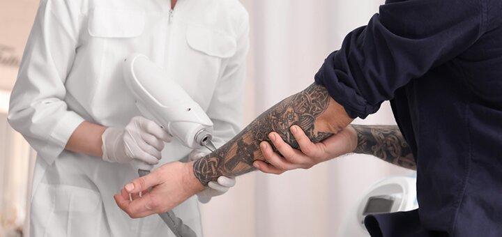 Лазерное удаление тату или татуажа в салоне красоты «Laser estetic»